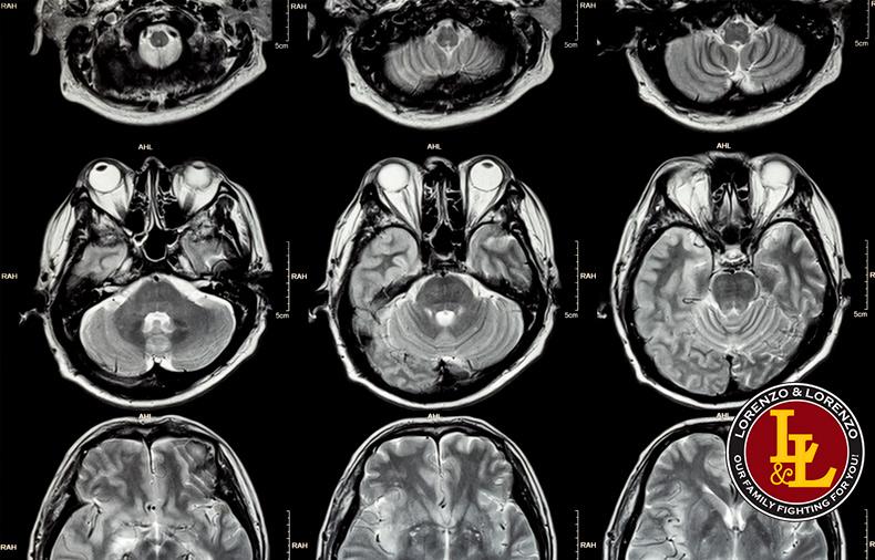 traumatic brain injury law